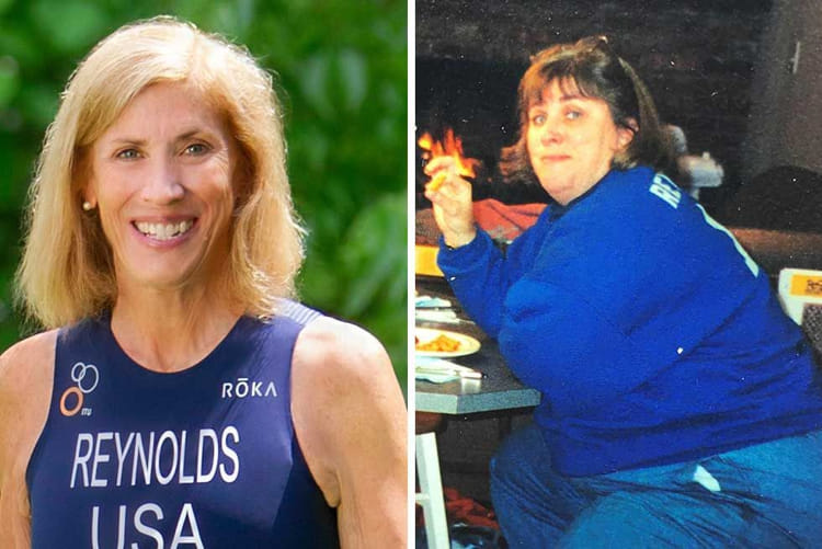 sue reynolds before after